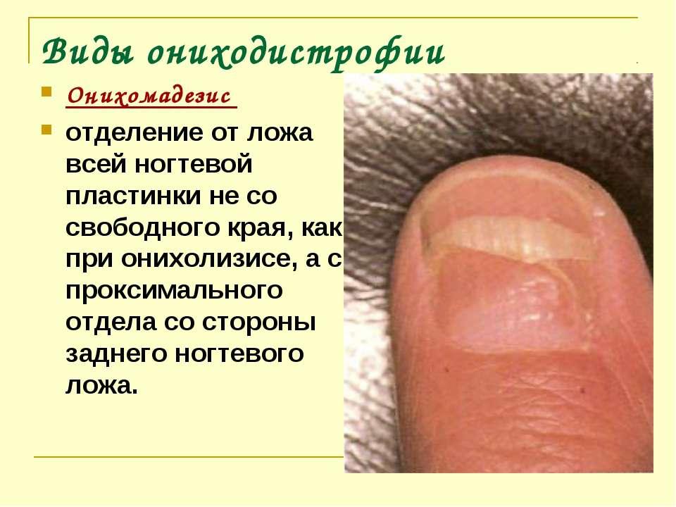 Ониходистрофия ногтей на руках и ногах: причины и методы терапии