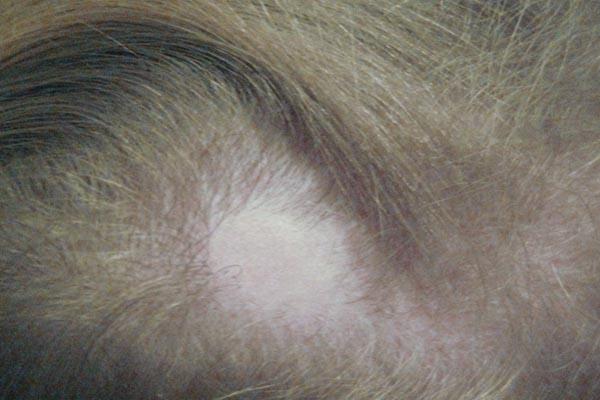 Очаговая алопеция у женщин – лечение, причины, профилактика