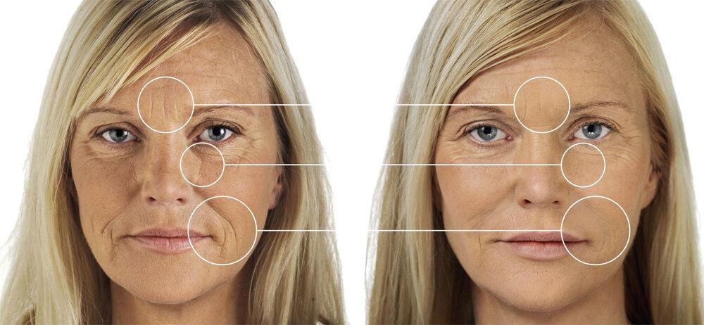 Ботокс для лица: вреден ли он, сколько стоит процедура, последствия ботокса на лице и отзывы