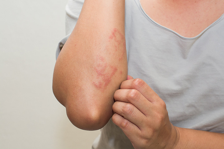 Аллергическая крапивница у взрослых, как и чем лечить