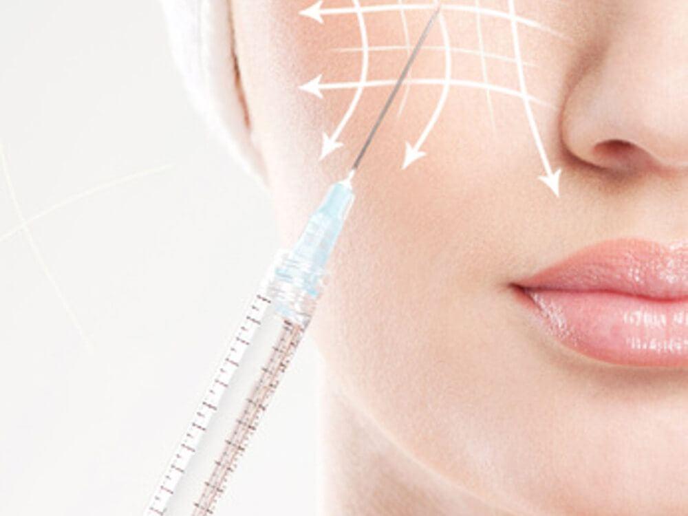 Контурная пластика лица филлерами