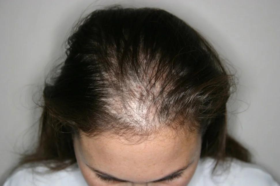 Выпадение волос, виды и лечение болезни