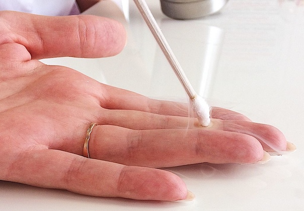 Удаление бородавок жидким азотом: все, что нужно знать