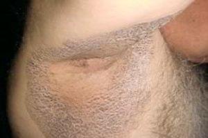 Эритразма в паху у женщин: фото, причины, лечение