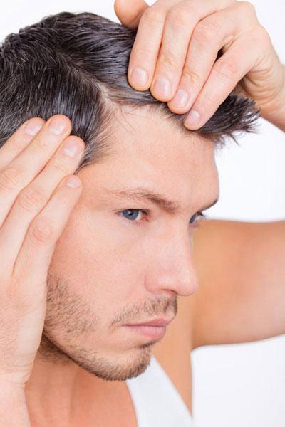 Облысение у мужчин: основные причины и методики лечения