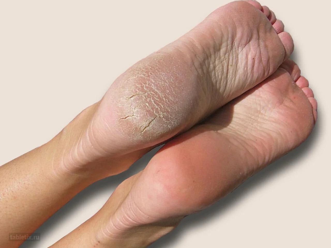 Трещина кости ноги: симптомы, признаки, лечение