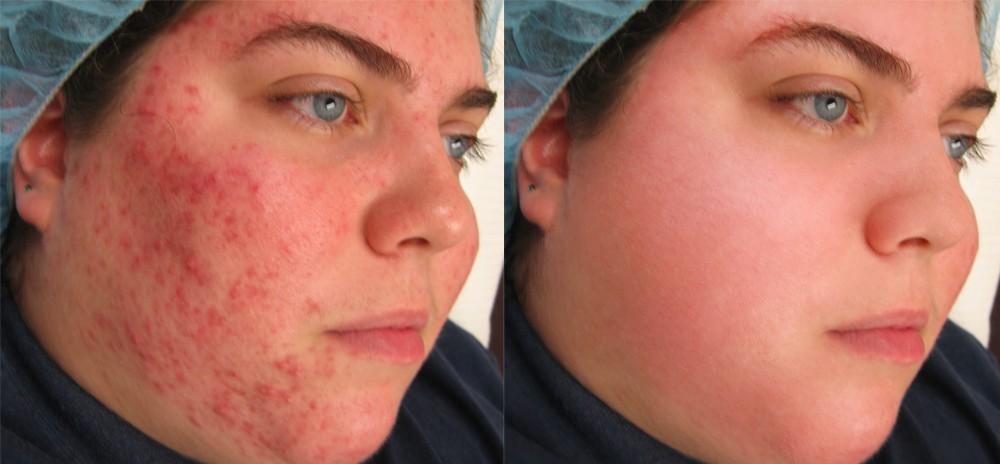 Возможные причины раздражений и покраснений на коже – средства лечения