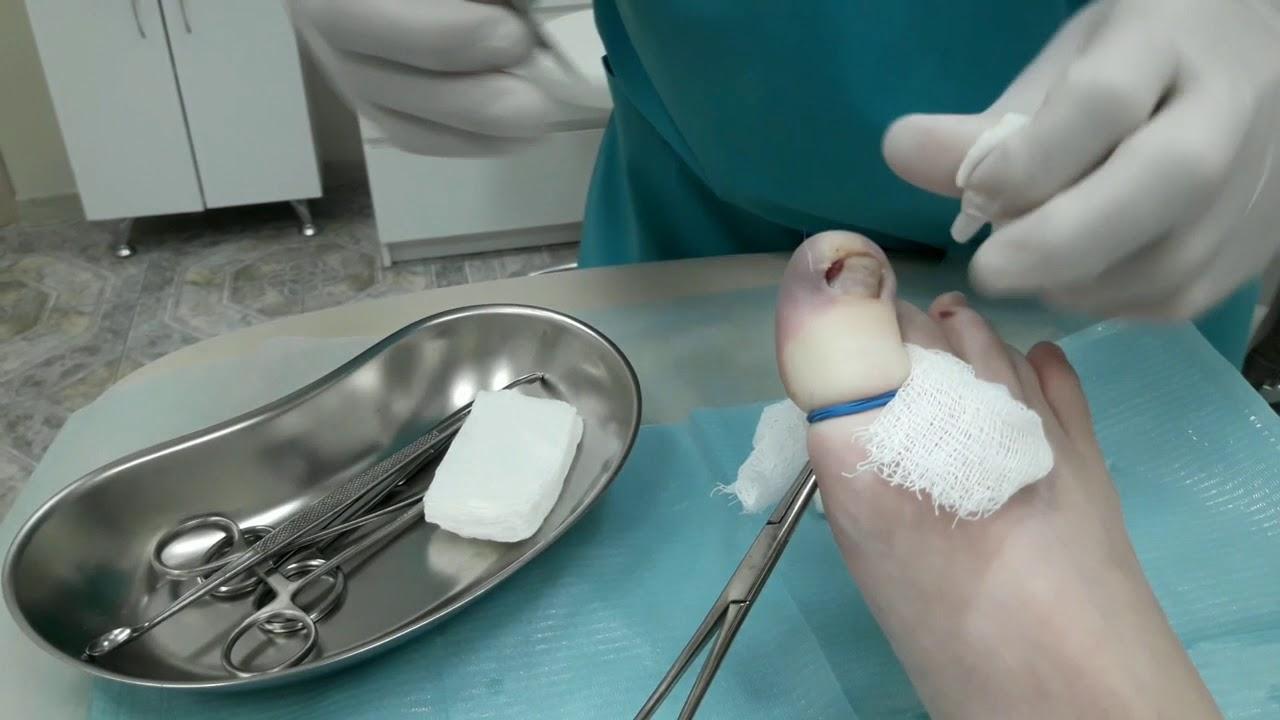 Вросший ноготь. Причины, симптомы, операция удаления ногтя и реабилитация