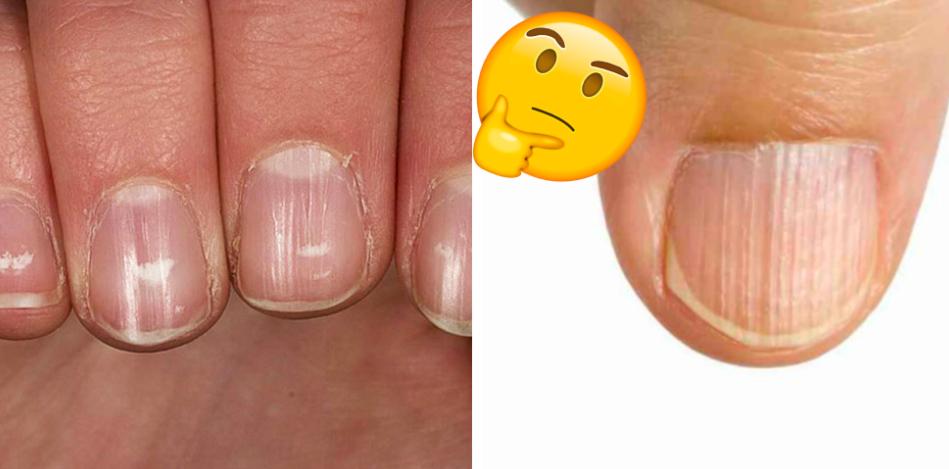 Ониходистрофия ногтей: лечение народными средствами, причины заболевания, фото и видео