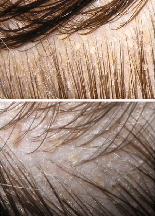 Чешется голова, и выпадают волосы: причины и лечение проблемы