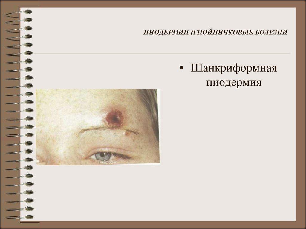 Пиодермия у детей
