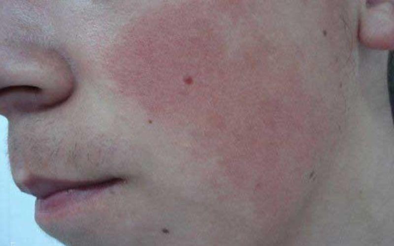 Кератома: симптомы, лечение, профилактика