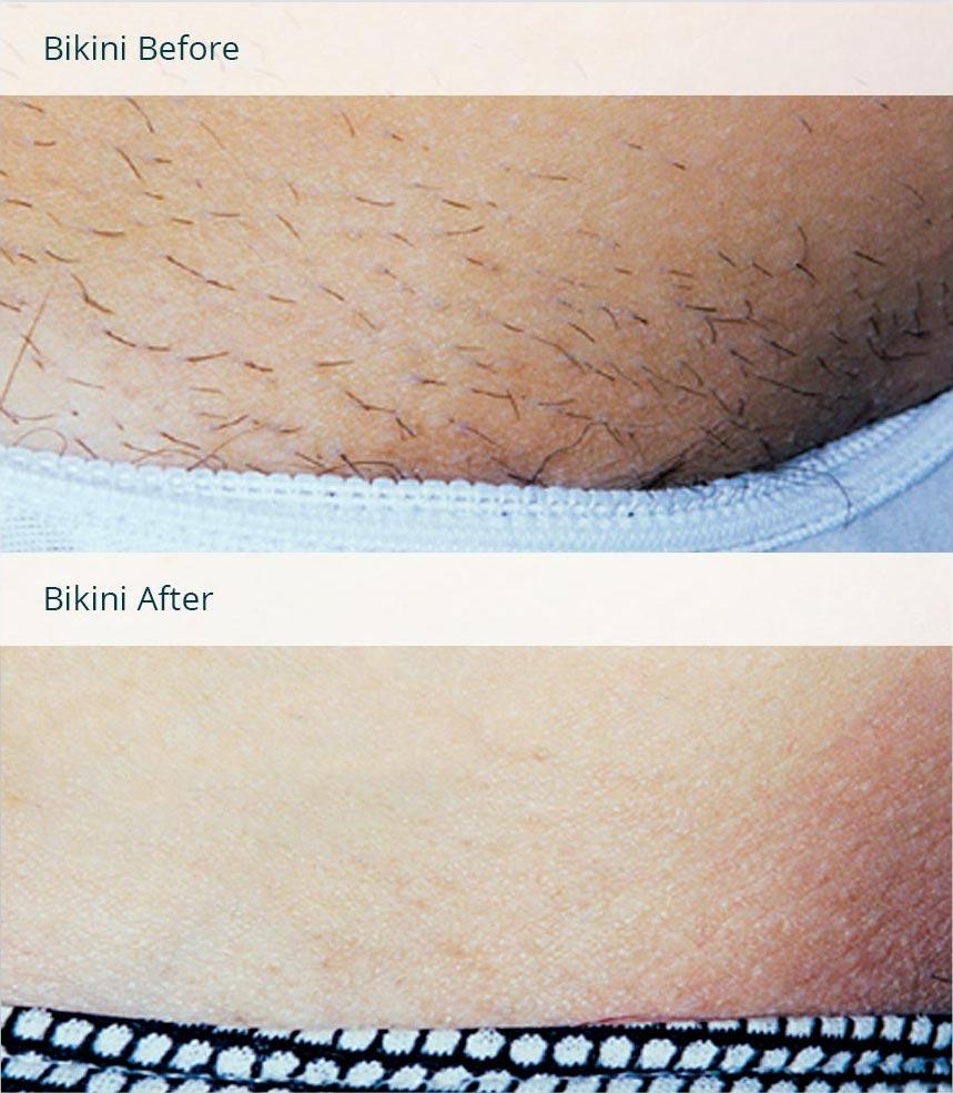 Фотоэпиляция глубокого бикини: отзывы, фото до и после процедуры, видео