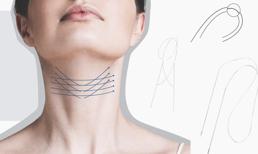 Омоложение без скальпеля нитями аптос — эффективность, нюансы реабилитации, фото до и после