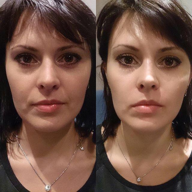 Продление красоты и молодости с помощью укола филлера в носогубные складки: тонкости процедуры и фото