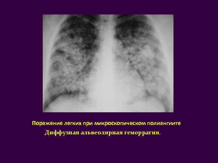 Васкулит – причины заболевания и методы лечения