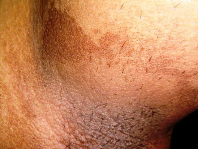 Эритразма у мужчин и женщин: симптомы и лечение