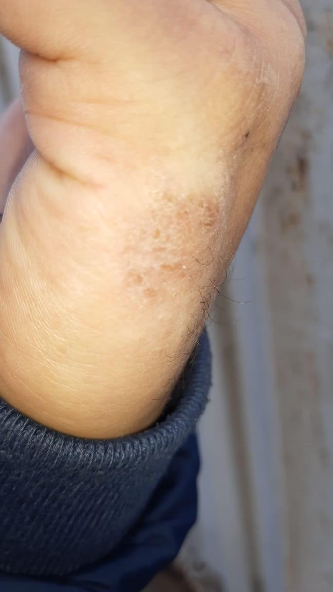 Убираем шелушение кожи на ладонях рук