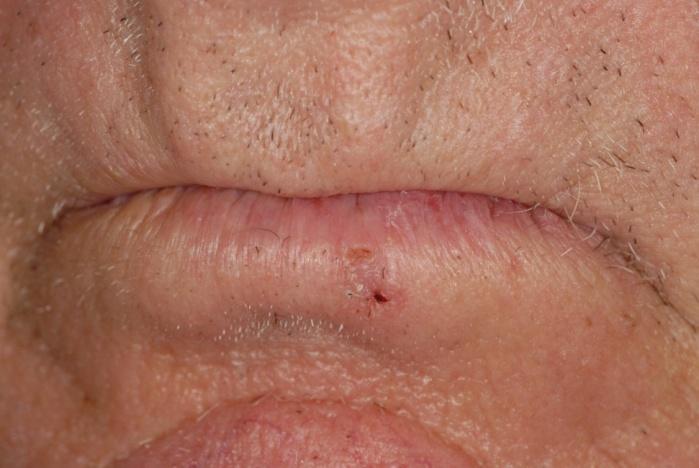 Базально-клеточный рак кожи