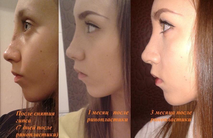 Красивый нос – модели с большим носом. у девушки большой нос. фото. красивые девушки с большим носом.