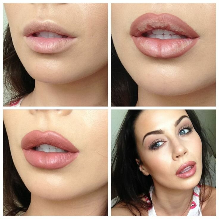 Как филлеры корректируют и улучшают губы