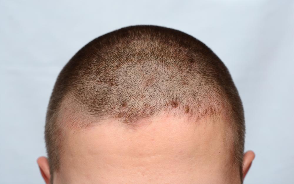 Псориаз на голове. псориаз волосистой части головы: лечение, симптомы и причины