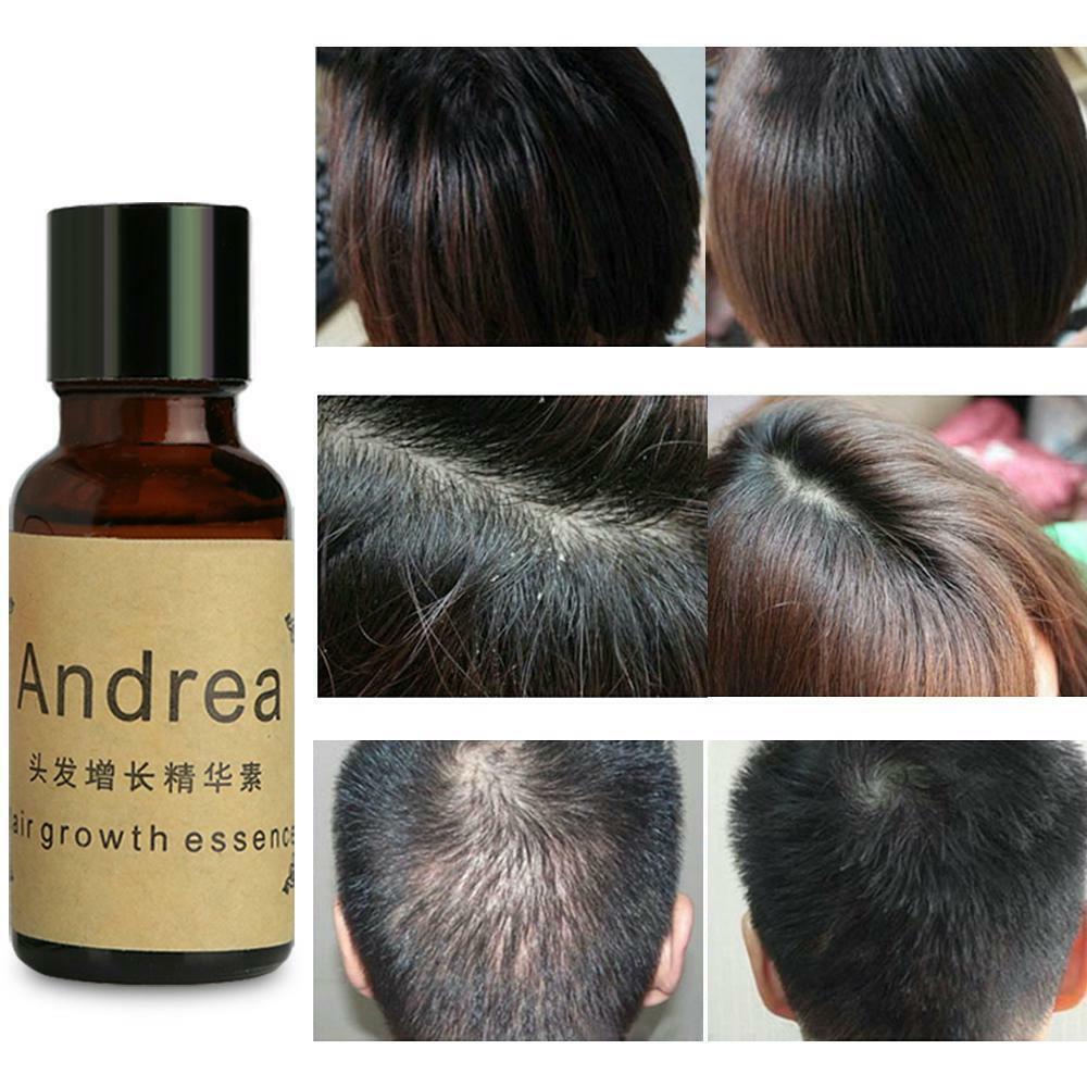 Домашние маски для роста волос: рекомендации для тех, кто мечтает о длинной и густой косе