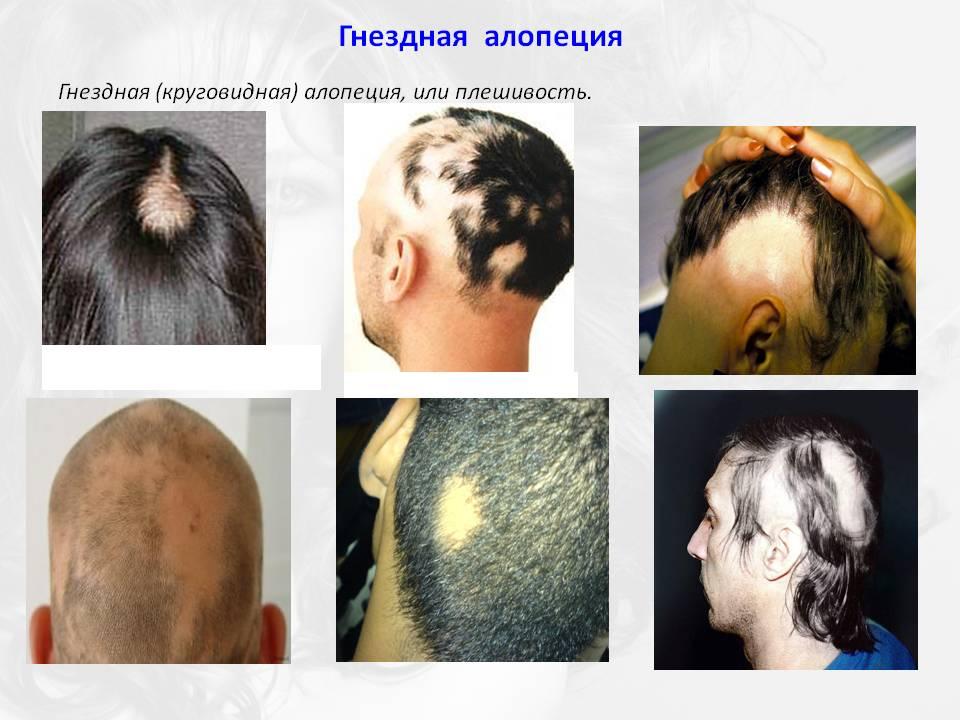 Внезапное облысение – не приговор! признаки и методы лечения очаговой алопеции