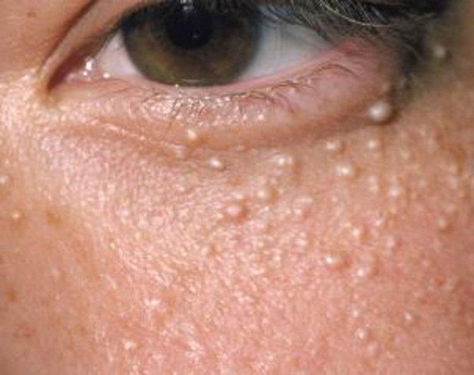 Причины возникновения жировиков на лице