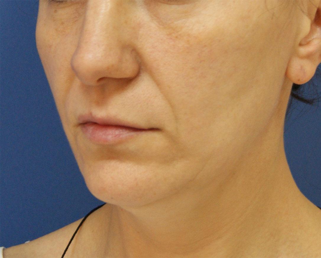 Липофилинг носогубных складок – простой способ быстрого омоложения