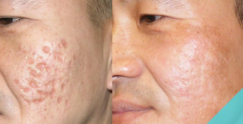 Как убрать шрамы на лице в домашних условиях