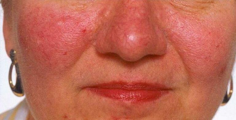10 причин покраснения кожи