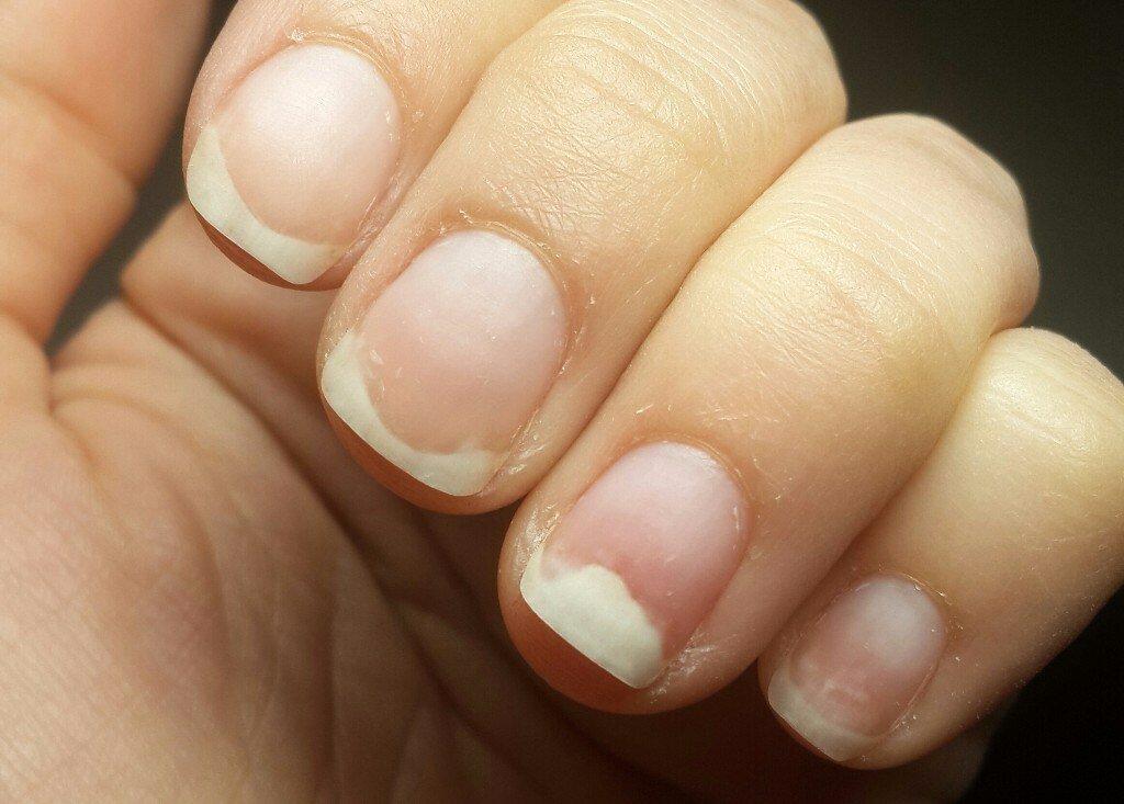 Проблемные ногти ониходистрофия