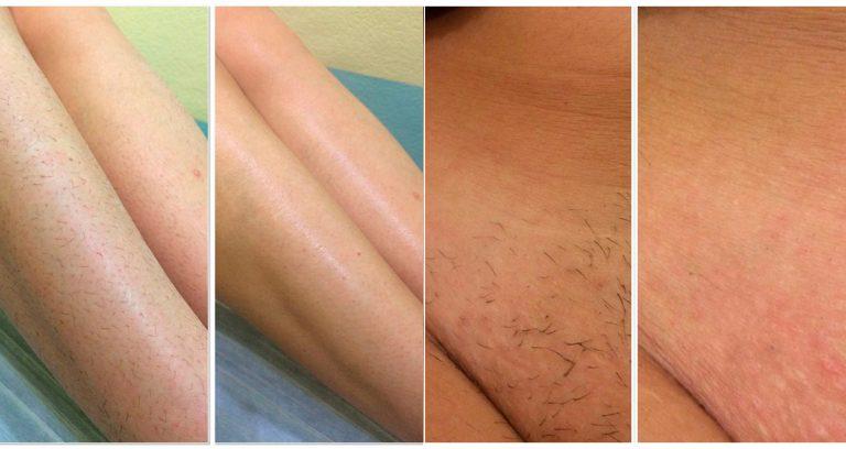 Правильная эпиляция: без воспаления, без раздражения, без вросших волос