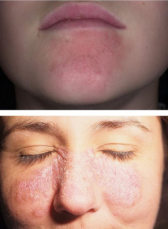 Причины раздражения на коже, покраснение лица, рук, ног, интимной зоны, головы, вокруг глаз. симптомы заболеваний, лечение