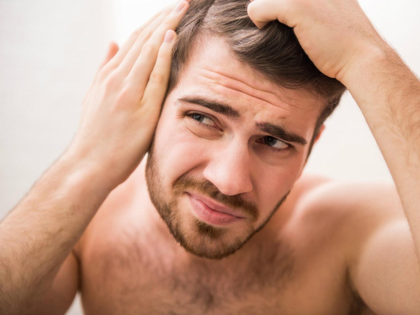 Облысение у мужчин – причины и лечение, средства от облысения