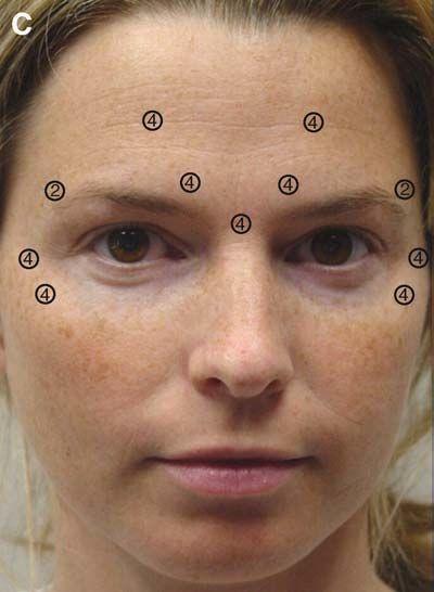 Диспорт — что это такое, процедура, уколы в лоб, межбровье от морщин. результаты, фото
