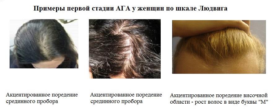 Диагностика и лечение диффузной алопеции: как сохранить волосы
