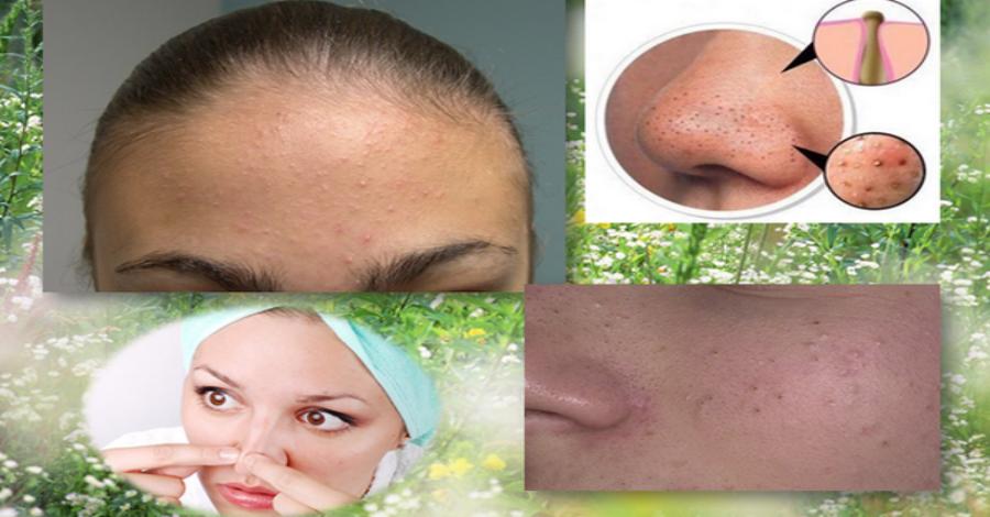 Чистка лица в домашних условиях от прыщей и черных точек, глубокое очищение кожи