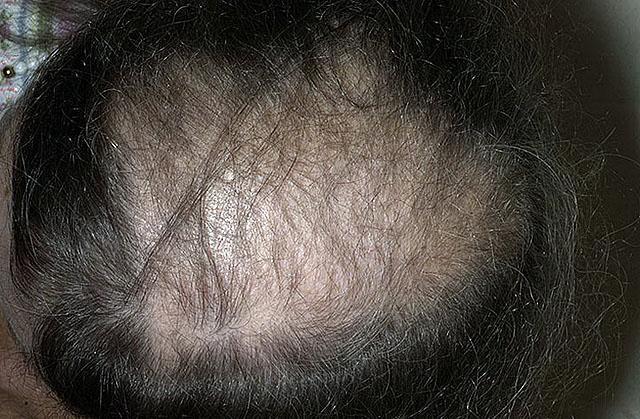 Как предотвратить облысение у мужчин. выпадение волос у мужчин,  средства от облысения