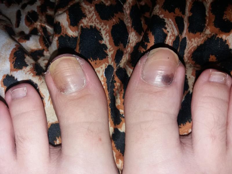 Основные причины появления черных пятен под ногтем