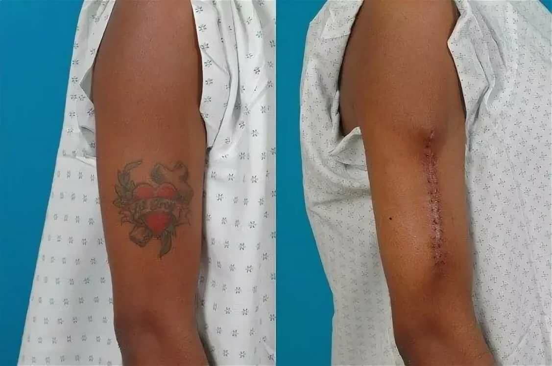 Как свести татуировку марганцовкой в домашних условиях. убрать татуировку в домашних условиях: правда и мифы.