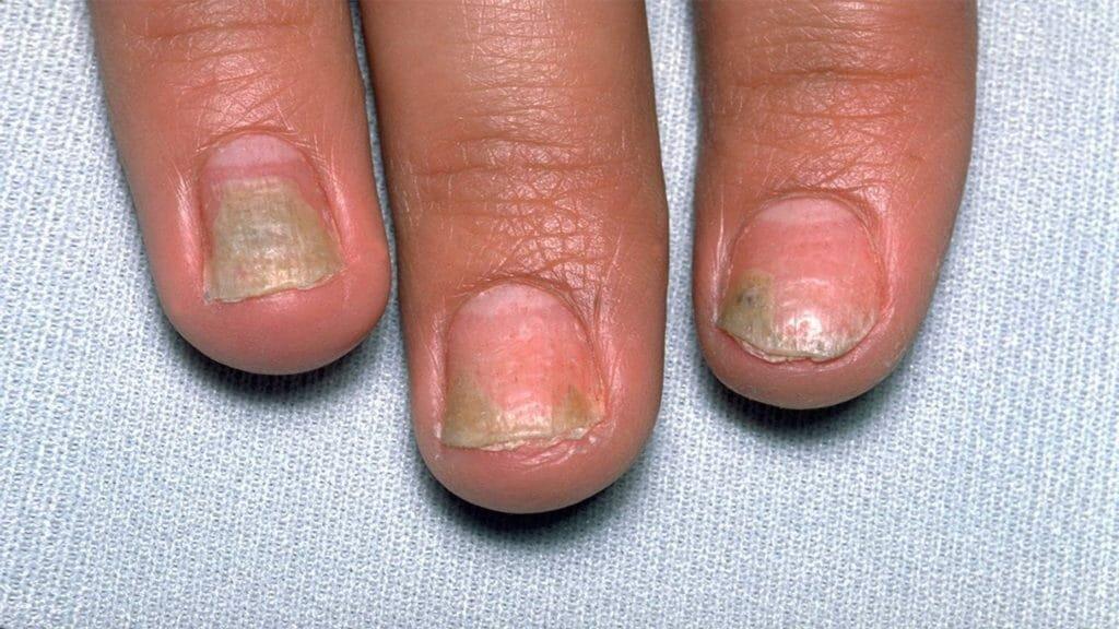 Как вылечить дистрофию ногтевой пластины