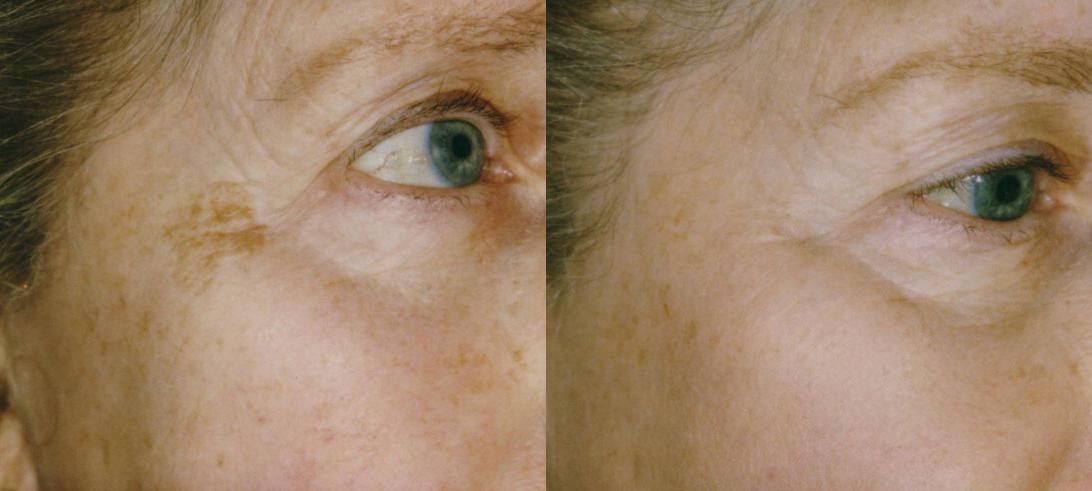 Убрать пигментацию на лице в домашних условиях быстро. кремы, народные средства