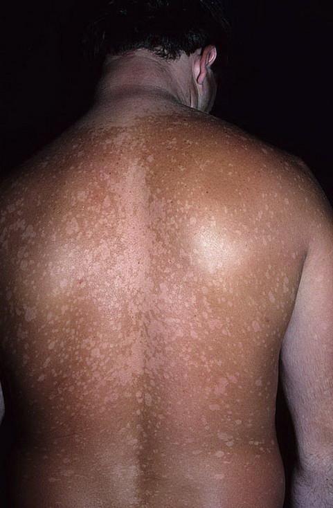 Стригущий лишай у человека. симптомы, причины, лечение для взрослых и детей. :: polismed.com