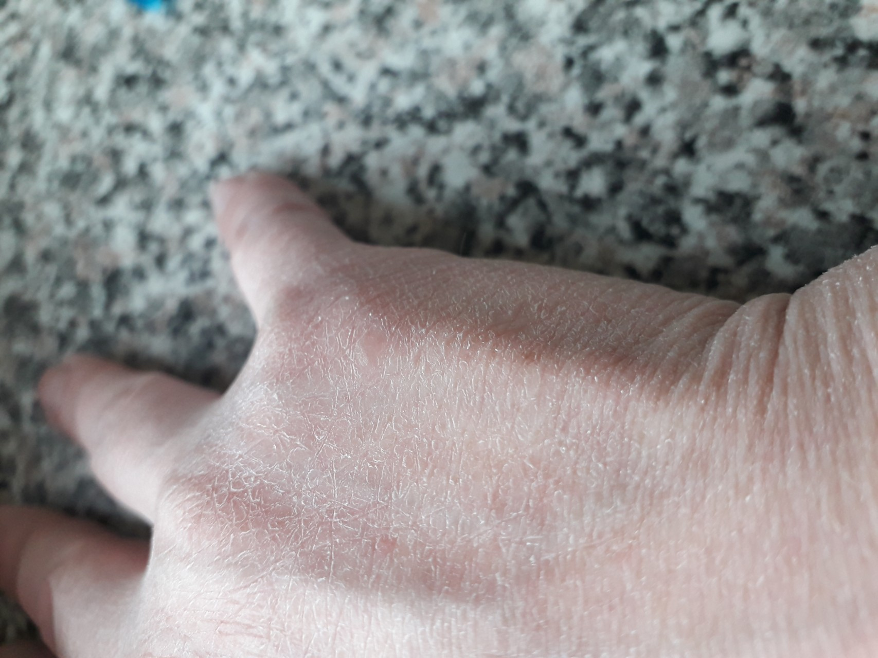 Если слезает кожа на пальцах рук: причины и лечение