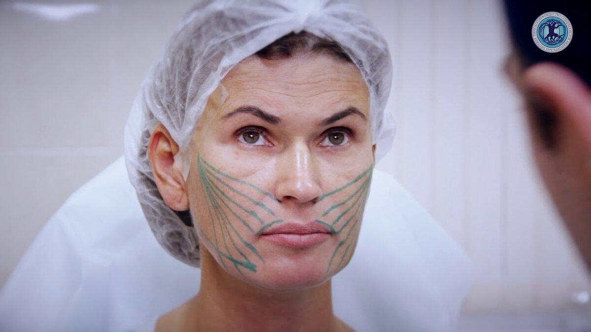 Как предотвратить старение кожи лица – нити аптос в косметологии
