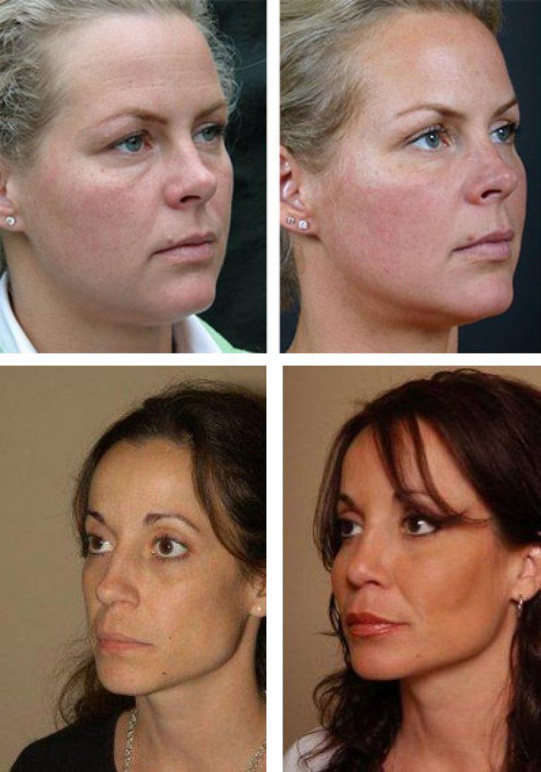 Липофилинг носогубных складок: плюсы процедуры и возможные осложнения