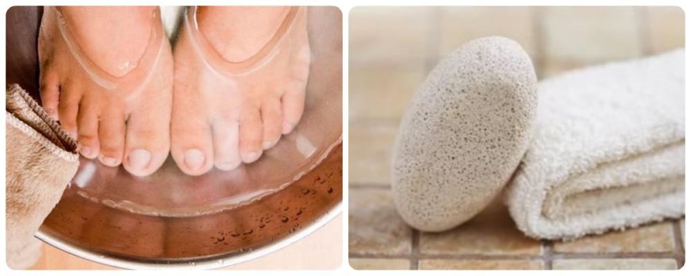 Мозоли на ногах. причины, первая помощь, лечение и профилактика