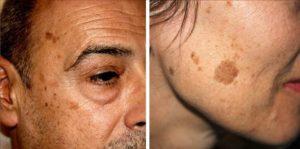 Пигментные пятна на лице. причины, лечение. как избавиться в домашних условиях